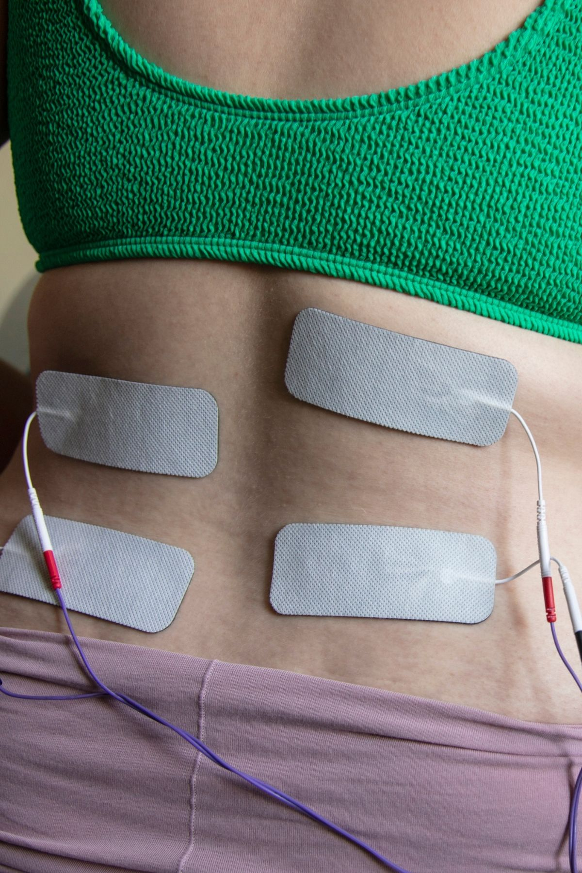 Woman shows her back patched with electrical wires from TENS machine during labor.